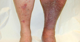 leech therapy for deep vein thrombosis