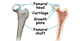 Avascular Necrosis of Femur Head